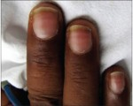 white lines on nails