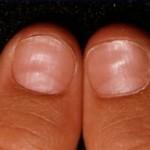 Scoop nails