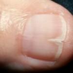 Split nails fingernails in ibs